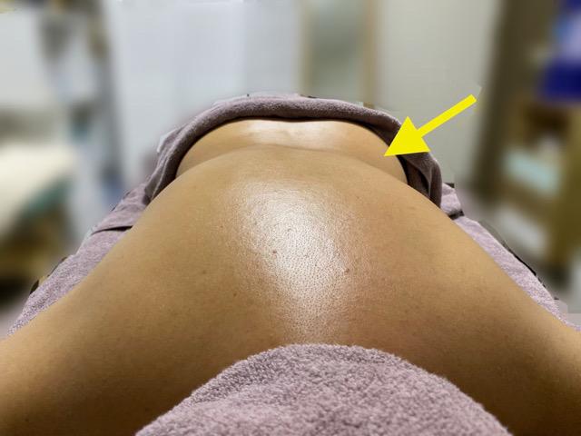 背中の丸みが右側だけ減った女性
